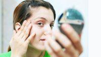Jenis Jerawat dan Cara Mengatasinya agar Wajah Tetap Cantik Berseri